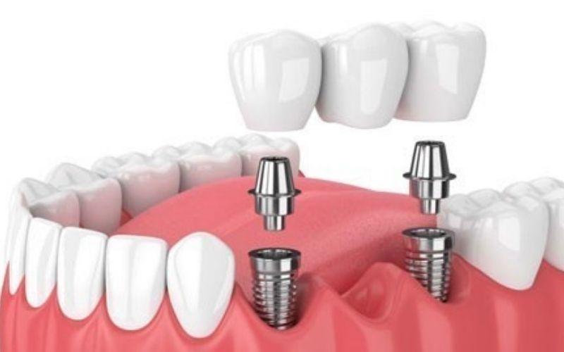 Cấy ghép Implant là giải pháp được ưa chuộng hiện nay