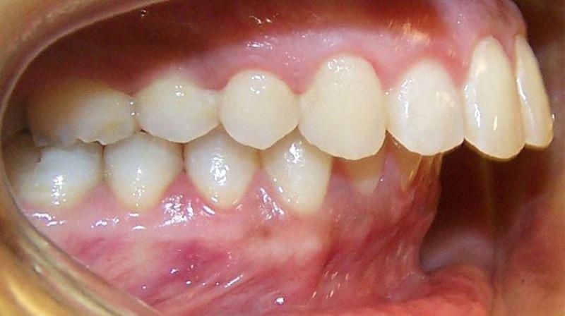 Răng hô có nên bọc sứ không là thắc mắc thường gặp