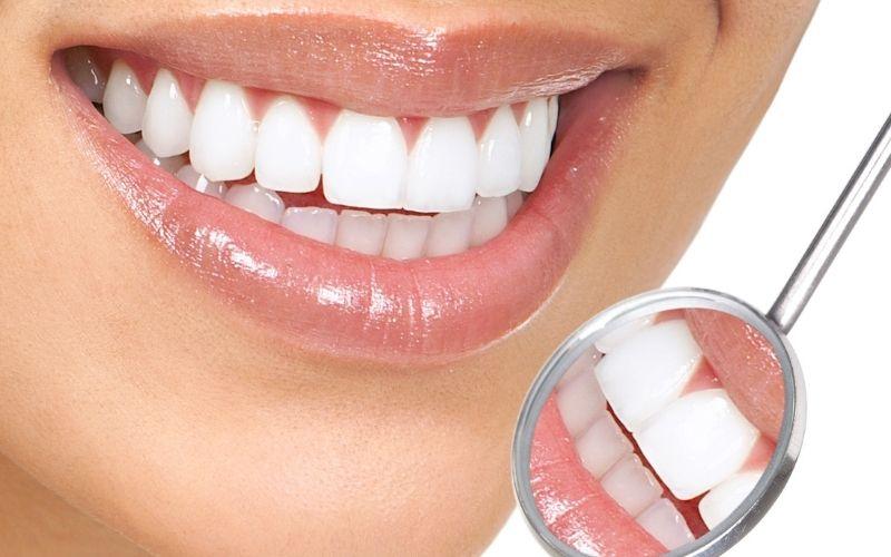 Bọc sứ giúp khắc phục tình trạng răng mọc khấp khểnh ở mức độ nhẹ