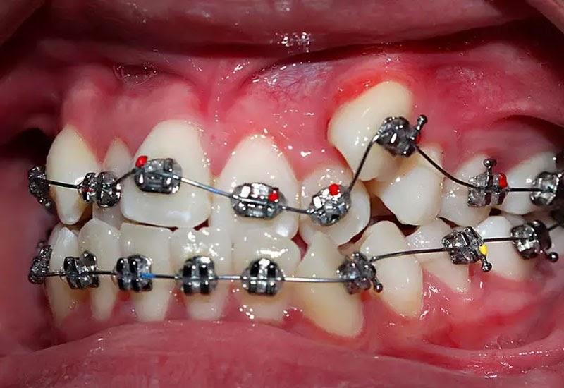 Niềng răng cho hiệu quả cao nhưng đòi hỏi sự kiên trì