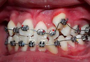 Răng khấp khểnh: Nguyên nhân, cách điều trị và địa chỉ thực hiện