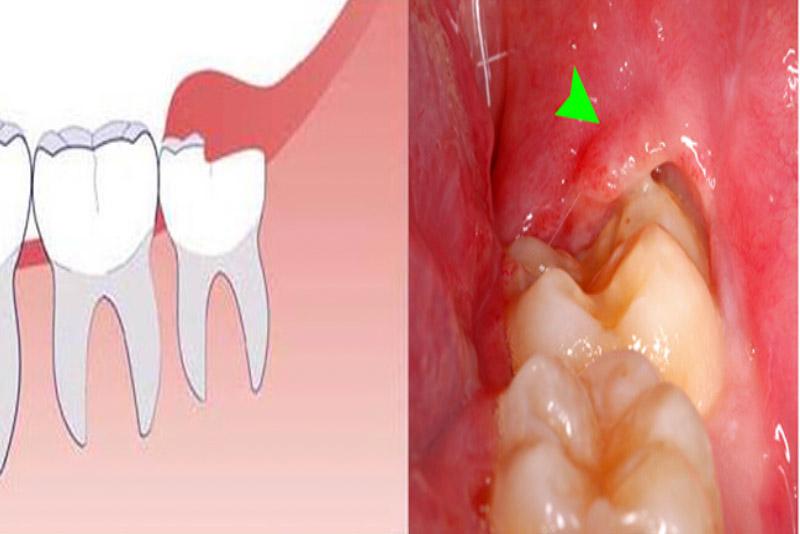 Răng khôn hay còn được gọi với cái tên răng số 8