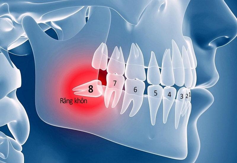 Chỉ loại bỏ răng khôn khi thực sự cần thiết