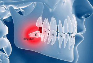 Răng khôn là gì? Khi nào nên loại bỏ và gợi ý địa chỉ thực hiện uy tín