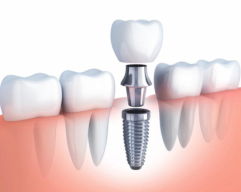 Trồng răng implant là phương pháp thẩm mỹ răng được ưa chuộng