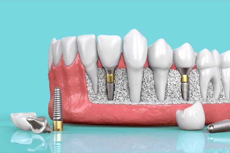 Trồng răng implant ngăn chặn tình trạng tiêu xương, tụt lợi