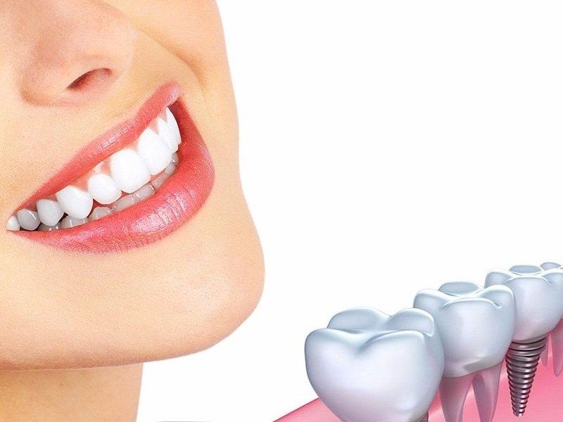 Những địa chỉ trồng răng implant uy tín, chất lượng