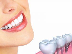 Trồng răng implant: 5 điều cần biết trước khi thực hiện