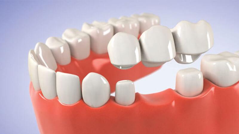 Trồng răng sứ có đau không là thắc mắc thường gặp