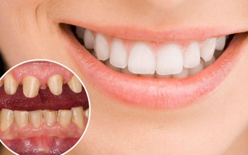 Có nhiều nguyên nhân khiến việc trồng răng bị đau