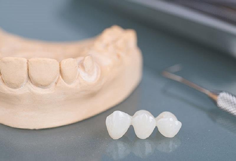 Thường bạn cần đến phòng khám nha khoa khoảng 2 lần khi trồng răng