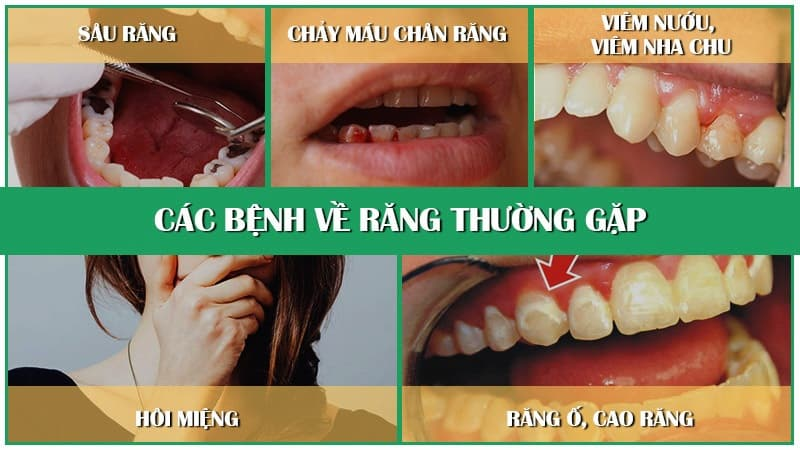 Top bệnh răng miệng thường gặp
