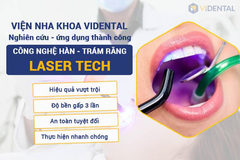 Vidental nghiên cứu công nghệ hàn trám răng Laser Tech