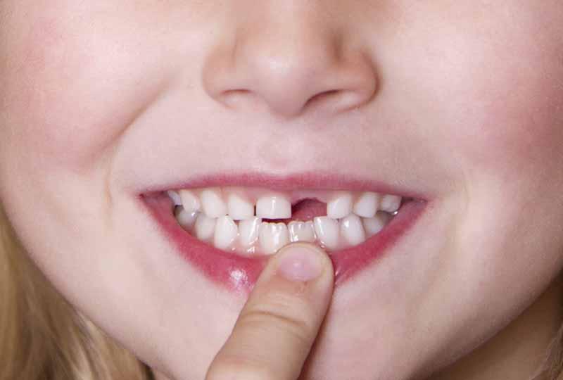 Thói quen xấu của trẻ khiến răng mọc chậm