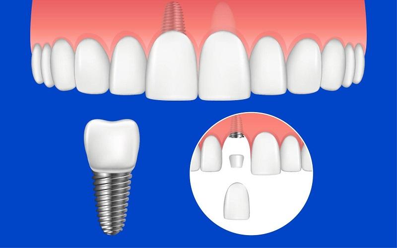 Trồng răng sứ được áp dụng trong một số trường hợp