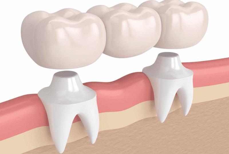 Cầu răng sứ giúp khắc phục trường hợp răng khiếm khuyết khá tốt