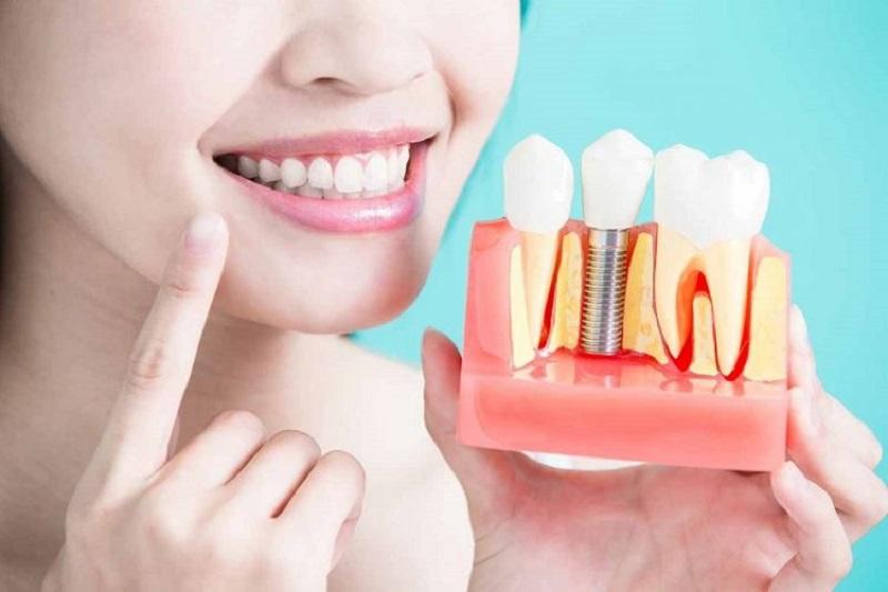 Hiện nay có nhiều phương pháp trồng răng khác nhau