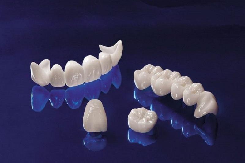 Trồng răng sứ giá bao nhiêu 1 chiếc tùy vào phương pháp thực hiện