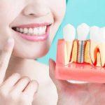 Trồng răng sứ giá bao nhiêu 1 chiếc [Bảng giá mới nhất]