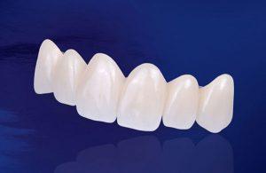 Trồng răng sứ loại nào tốt nhất [Đánh giá ưu, nhược điểm]