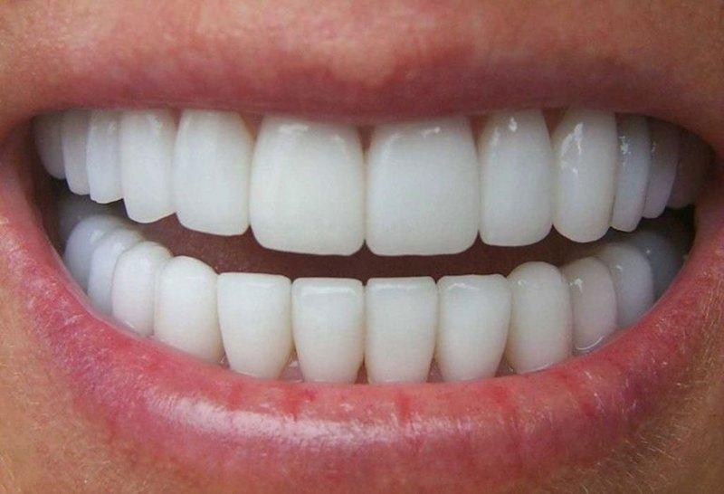 Chi phí trồng răng là vấn đề được nhiều người quan tâm