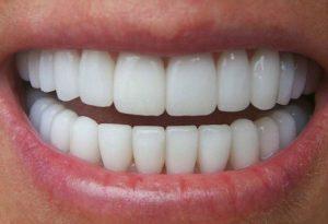 Trồng răng sứ nguyên hàm - 6 điều cần biết trước khi thực hiện