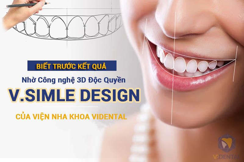 Công nghệ Thiết kế nụ cười V.Smile Design tại Vidental