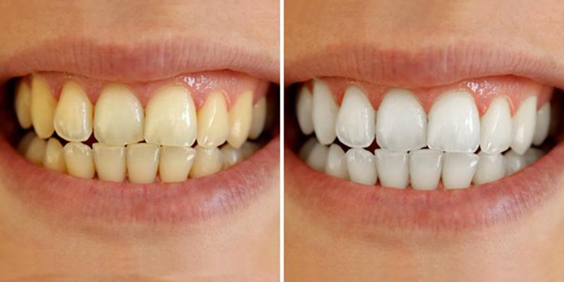 Tẩy trắng răng giúp bạn lấy lại sự tự tin khi giao tiếp