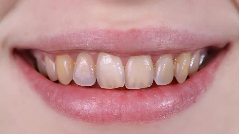 Người có hàm răng ố vàng nên tẩy trắng