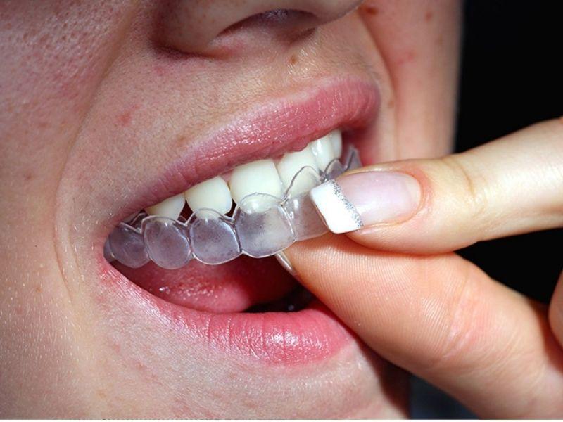 Đeo máng tẩy tại nhà giúp bạn có hàm răng trắng sáng bất ngờ