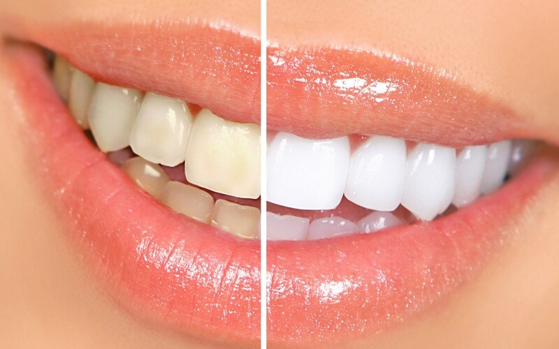 Thực hiện làm sáng răng bằng hóa chất không gây đau đớn