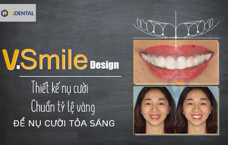 Lợi thế của công nghệ 3D V.Smile Design